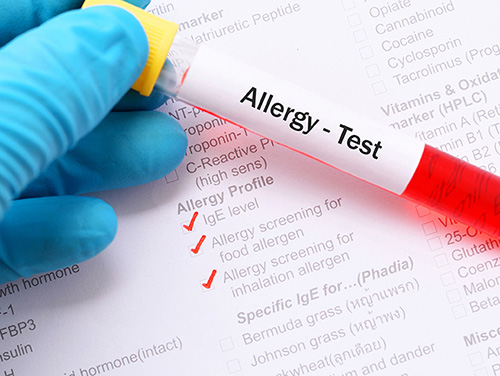 Allergy-diagnosis-test