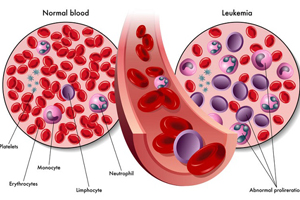 تشخیص سرطان خون