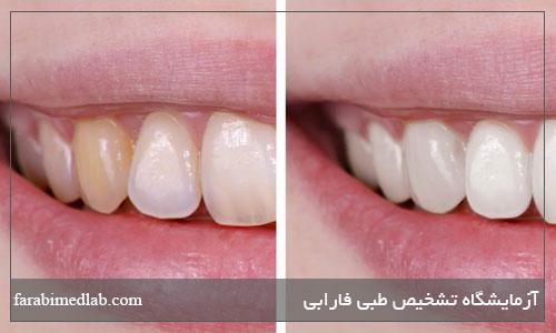 مواد مخرب مینای دندان