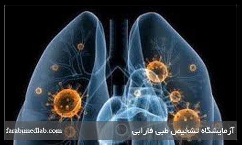 تست تنفسی UBT