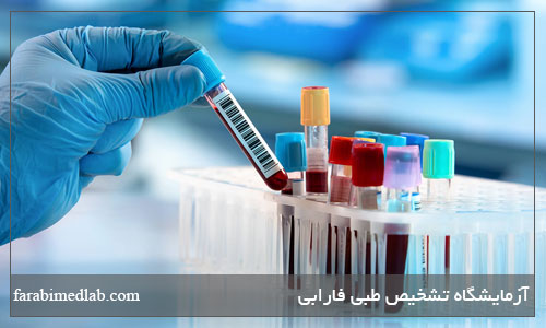 نکات قبل آزمایش خون