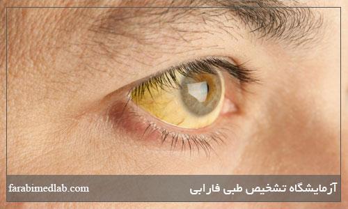 دلیل زردی چشم