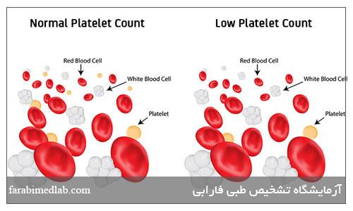 کمبود پلاکت خون
