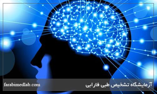 چاپکی مغز