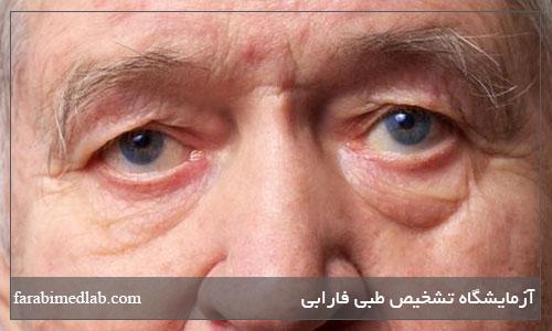 وضعیت بینائی در مردان
