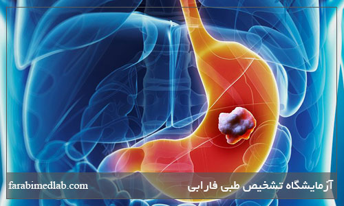 نشانه های سرطان معده