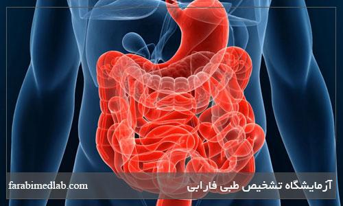 درمان طبیعی یبوست