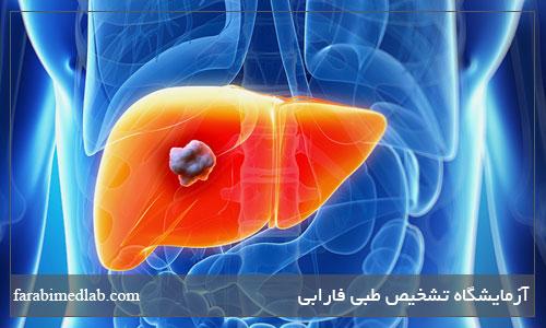 درمان سرطان کبد