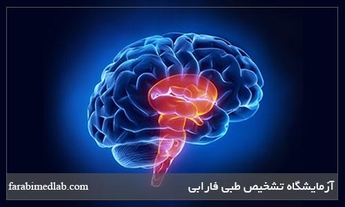 کاهش خطر سکته مغزی