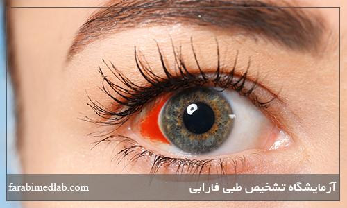 نشانه لکه خونی در چشم