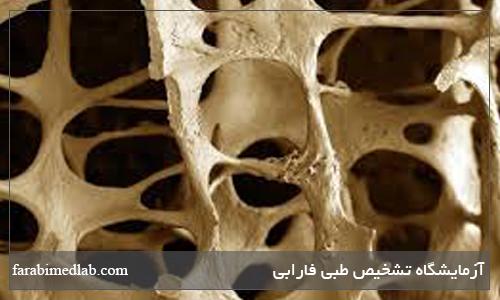 عوامل پوکی استخوان