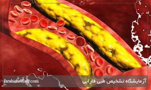 دلایل اصلی افزایش چربی خون