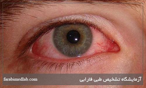 علائم سرطان چشم