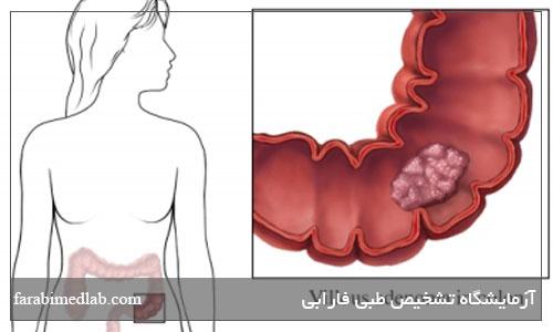 آزمایش خون در مدفوع