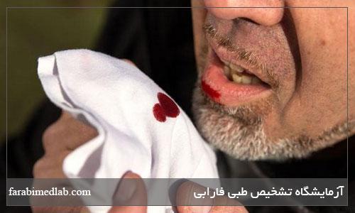 سرفه خونی