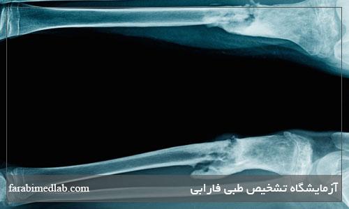 علائم عفونت استخوان