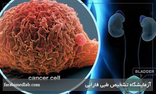 مراحل سرطان مثانه