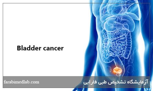 جلوگیری از سرطان مثانه
