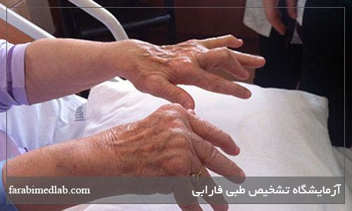 آرتریت پسوریاتیک