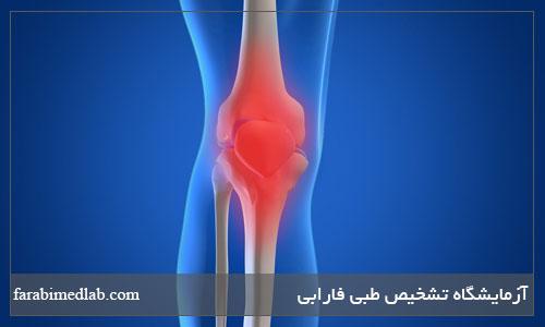 درمان آرتروز (OA)